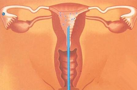 幫精子一把——人工授精過程